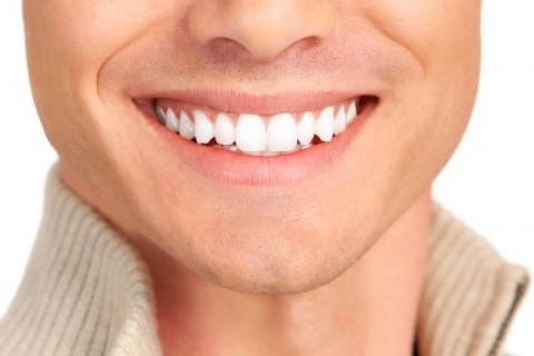 Marielaina-Perrone-DDS-Teeth-Whitening-9-480x320